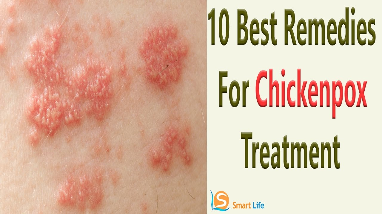 Chicken Pox Overview Symptoms Causes Rash Vaccine