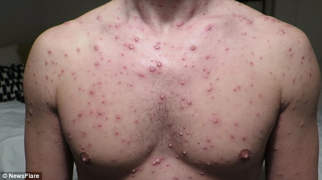 Chicken Pox In Male Adults