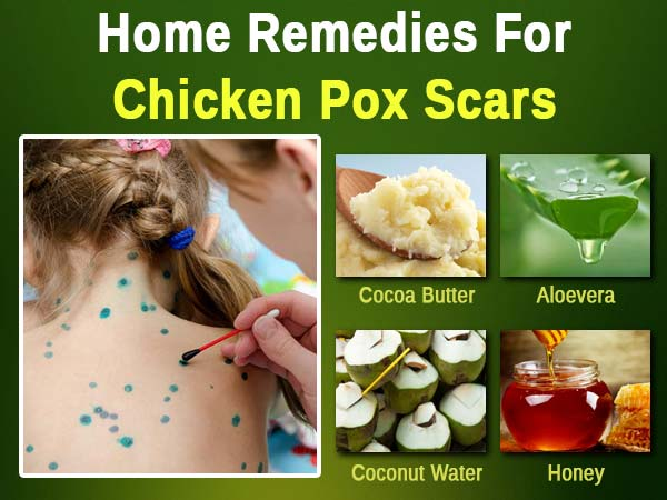 Chicken Pox Treatment At Home