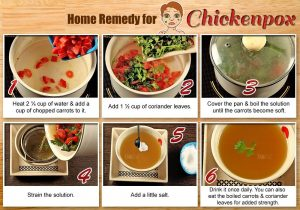 How is Chickenpox Treated at Home