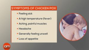 Chicken Pox Second Time Symptoms
