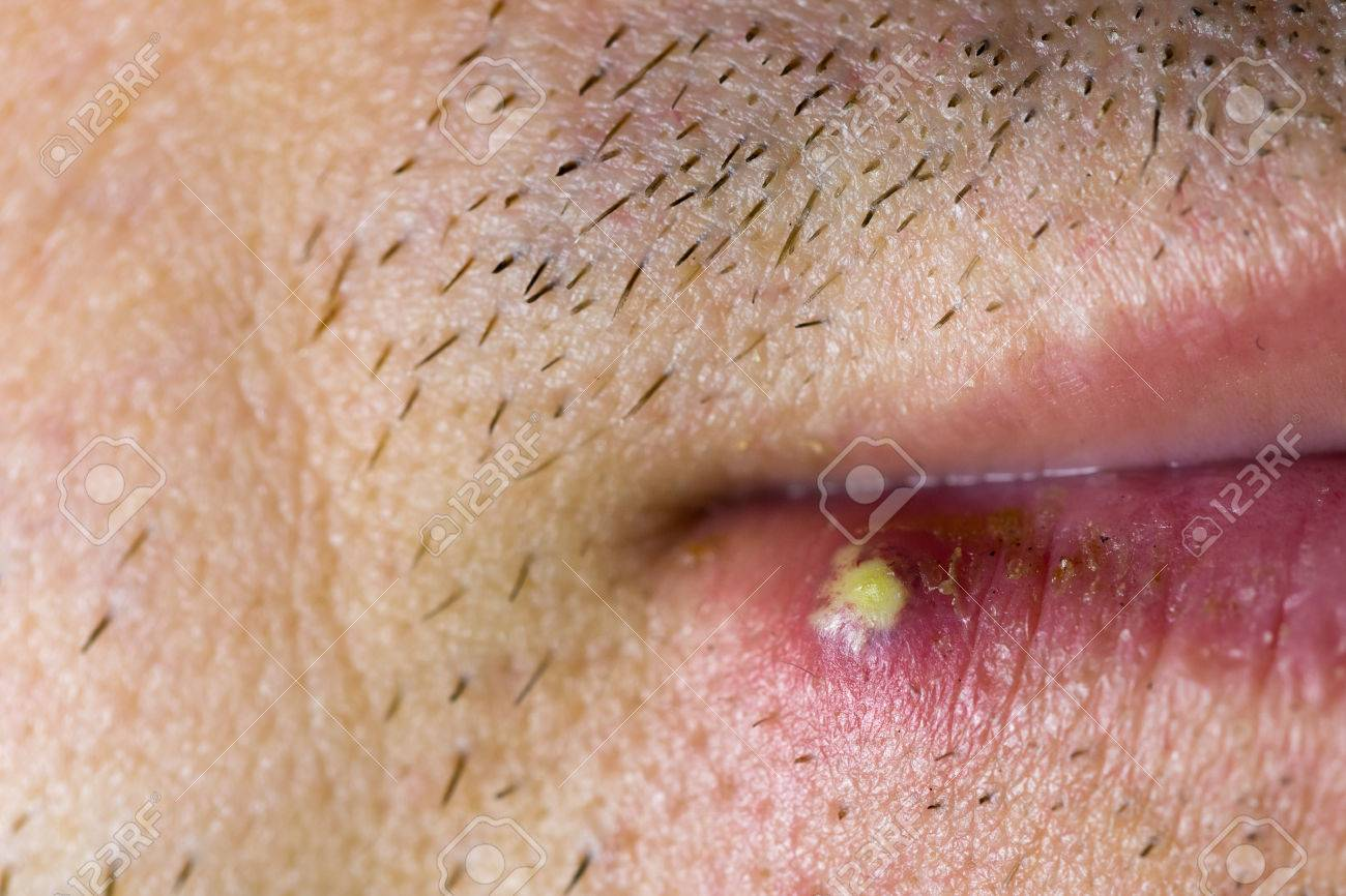 Herpes Pictures Male