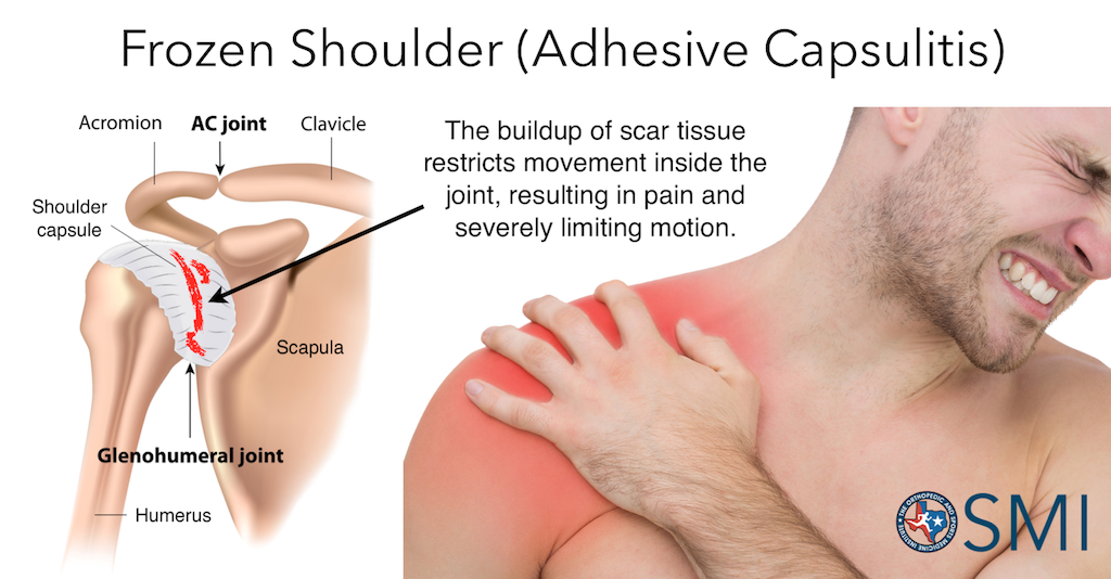 What are the First Signs of Frozen Shoulder