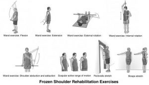 Exercise Based Recuperation