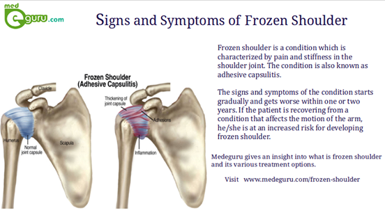 Symptoms of Frozen Shoulder