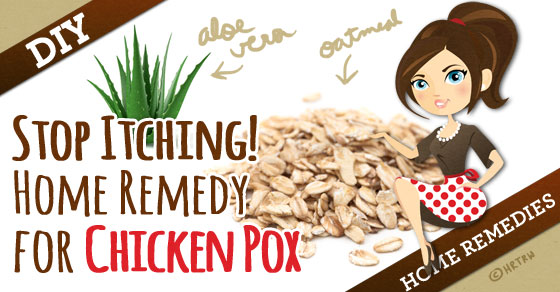 Chicken Pox Treatment For Itching