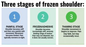 Frozen Shoulder Stages