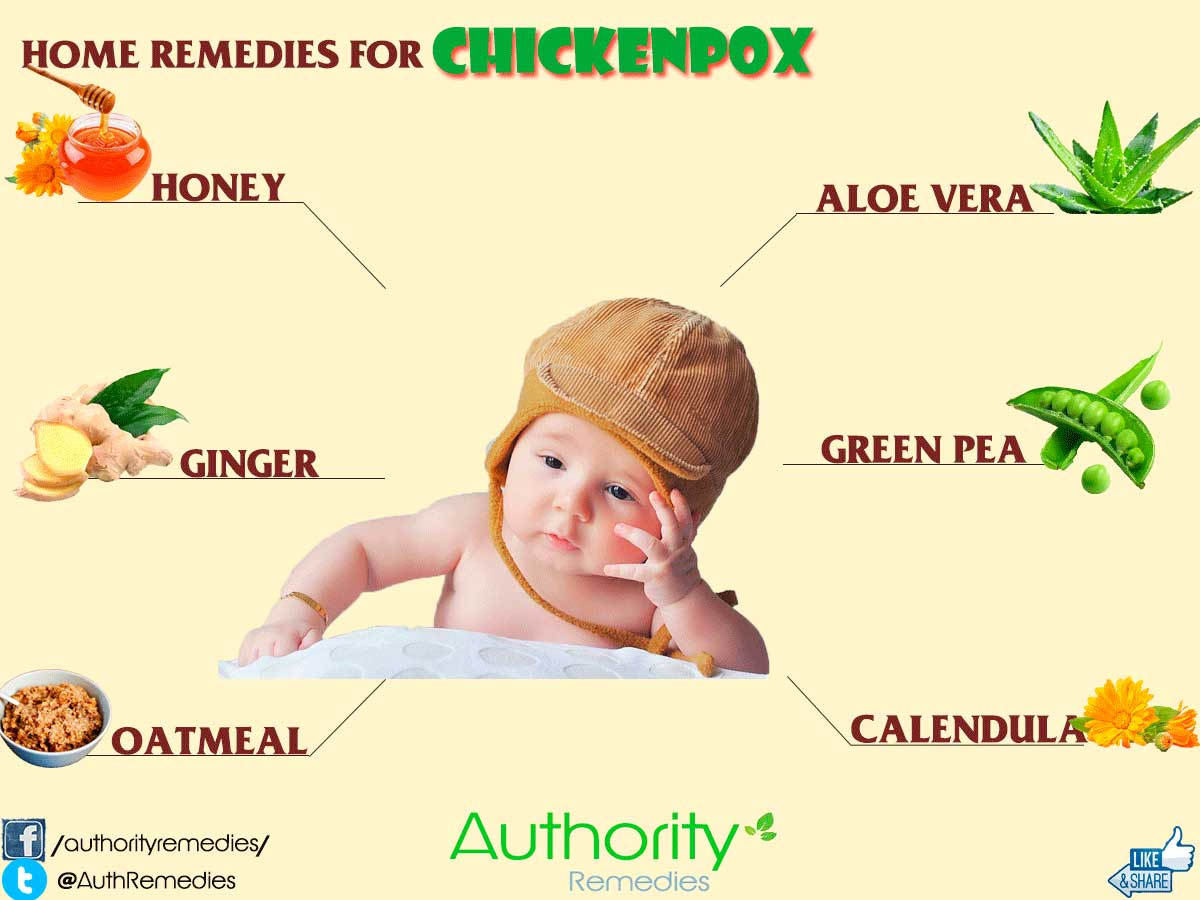 Chicken Pox Itching Home Remedy