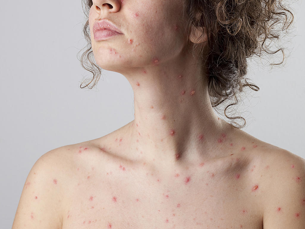 Chicken Pox Pictures Early Stages Adults