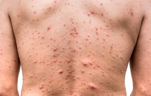 Chickenpox Caused By